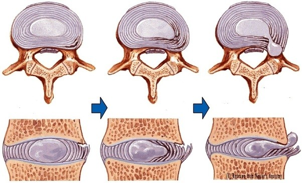 protrusion of a normal disc of spine