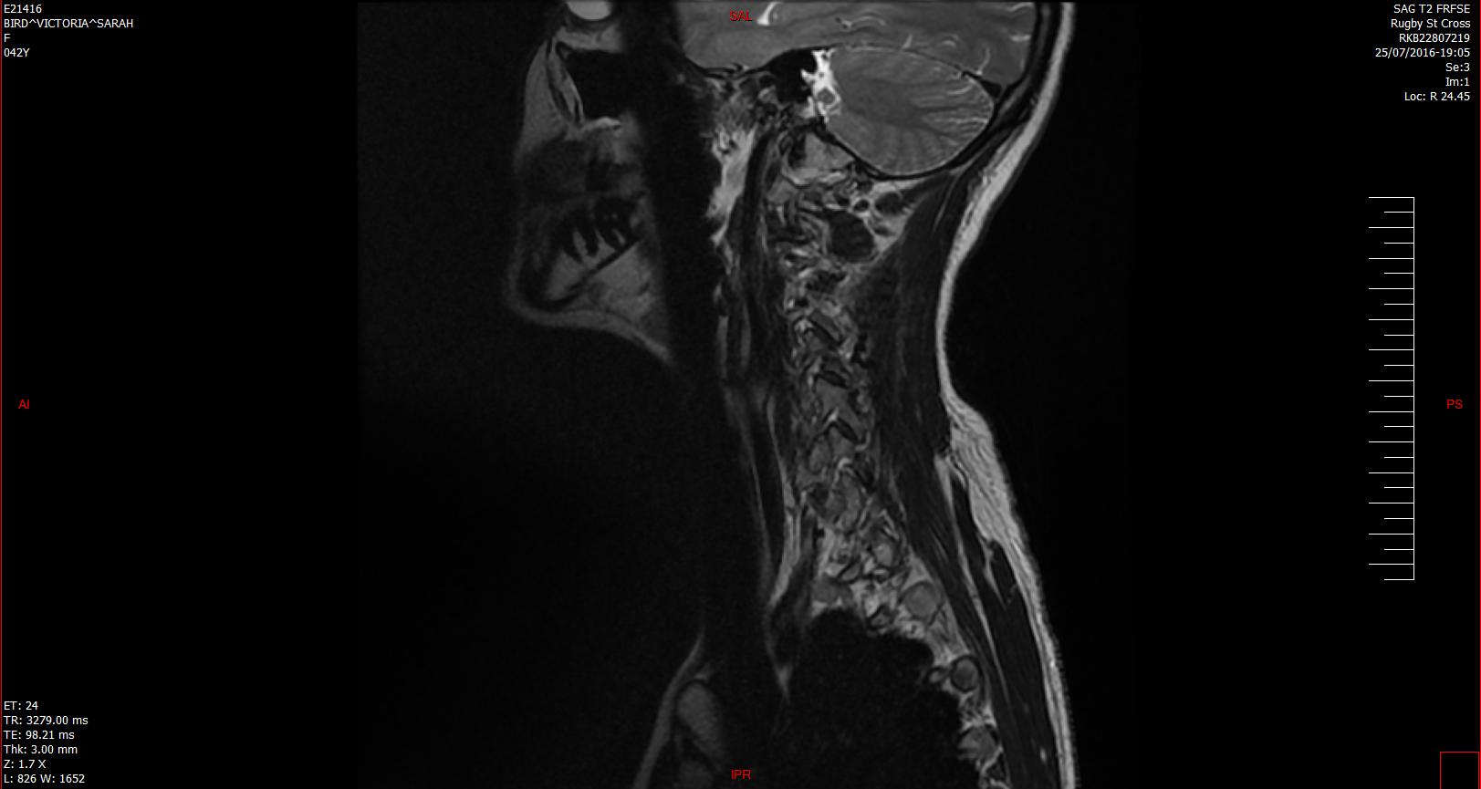 bulging disc in C4-C5, C5-C6